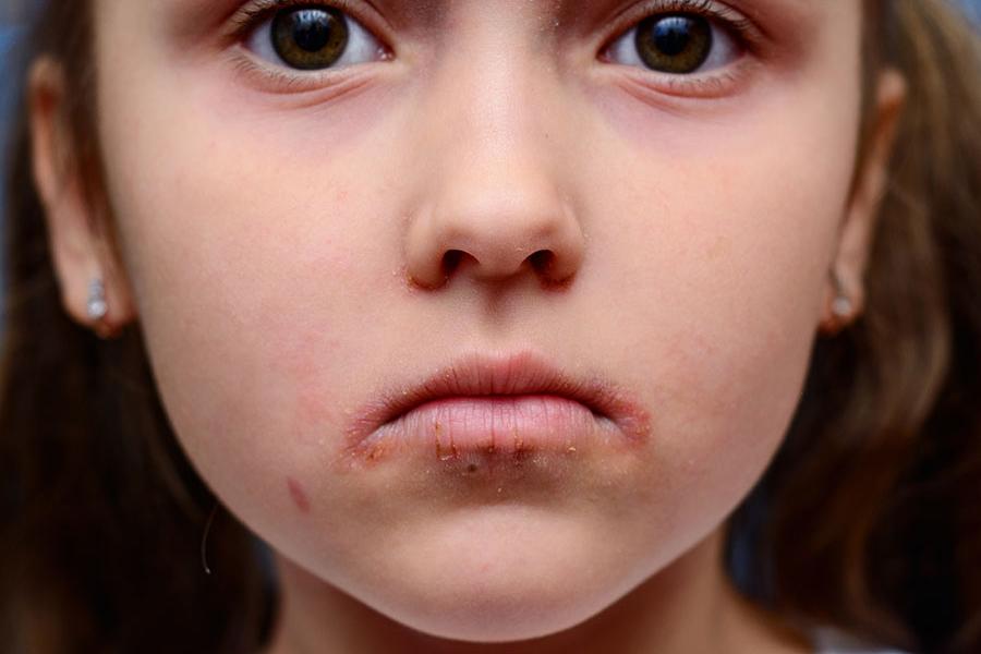 atopowe zapalenie skóry warszawa