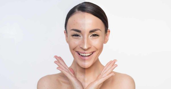 usuwanie blizny na twarzy