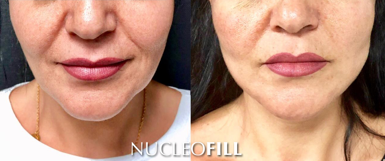 przed i po nuceofill