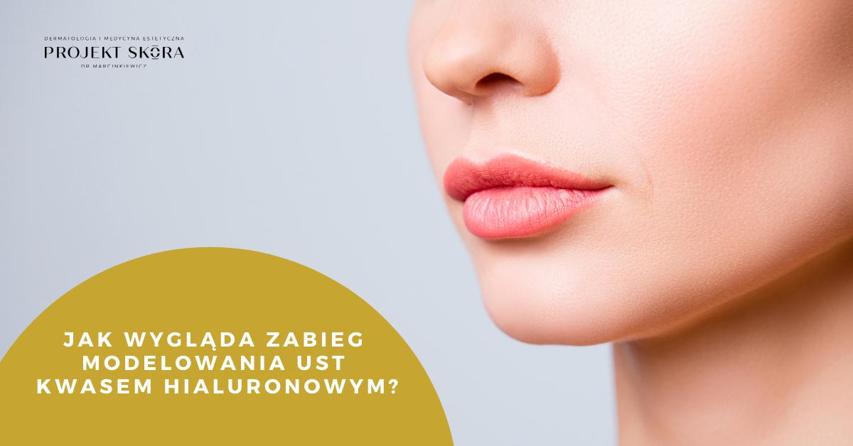 modelowanie ust kwas hialuronowy