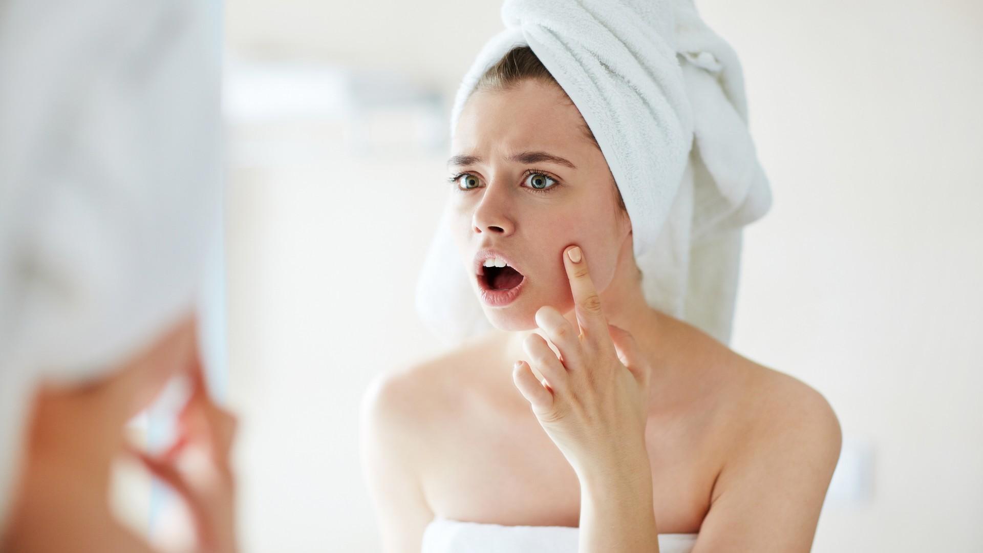 trądzik młodzieńczy leczenie
