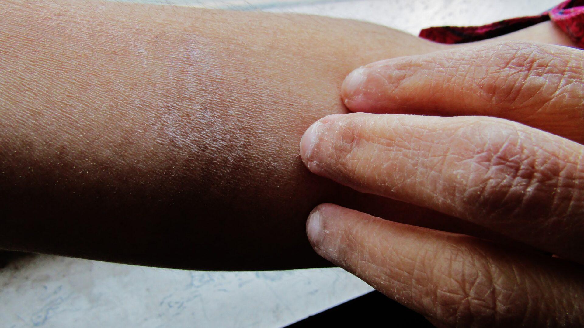Co oznacza sucha skóra na dłoniach