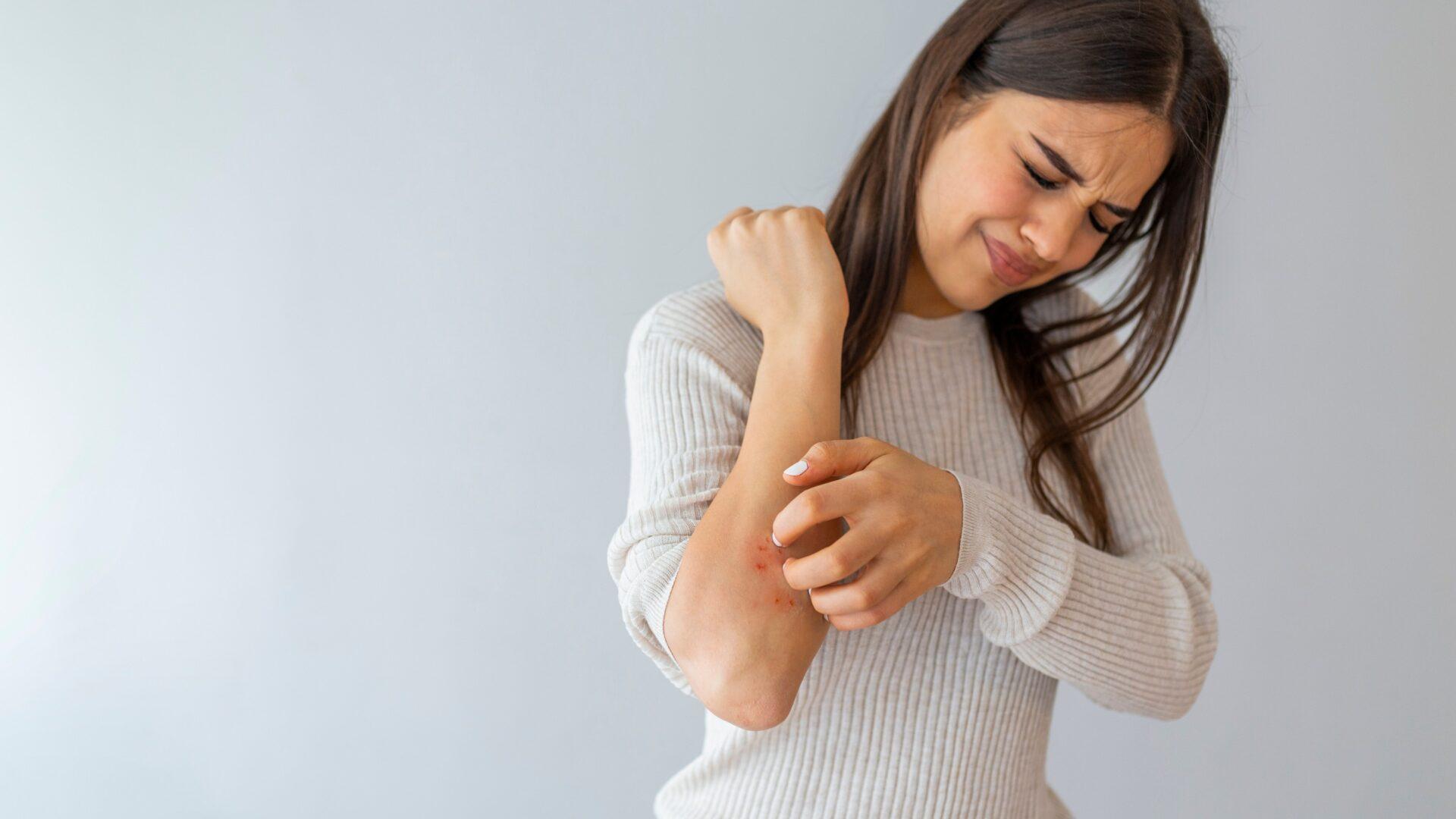 O jakich chorobach może świadczyć sucha skóra