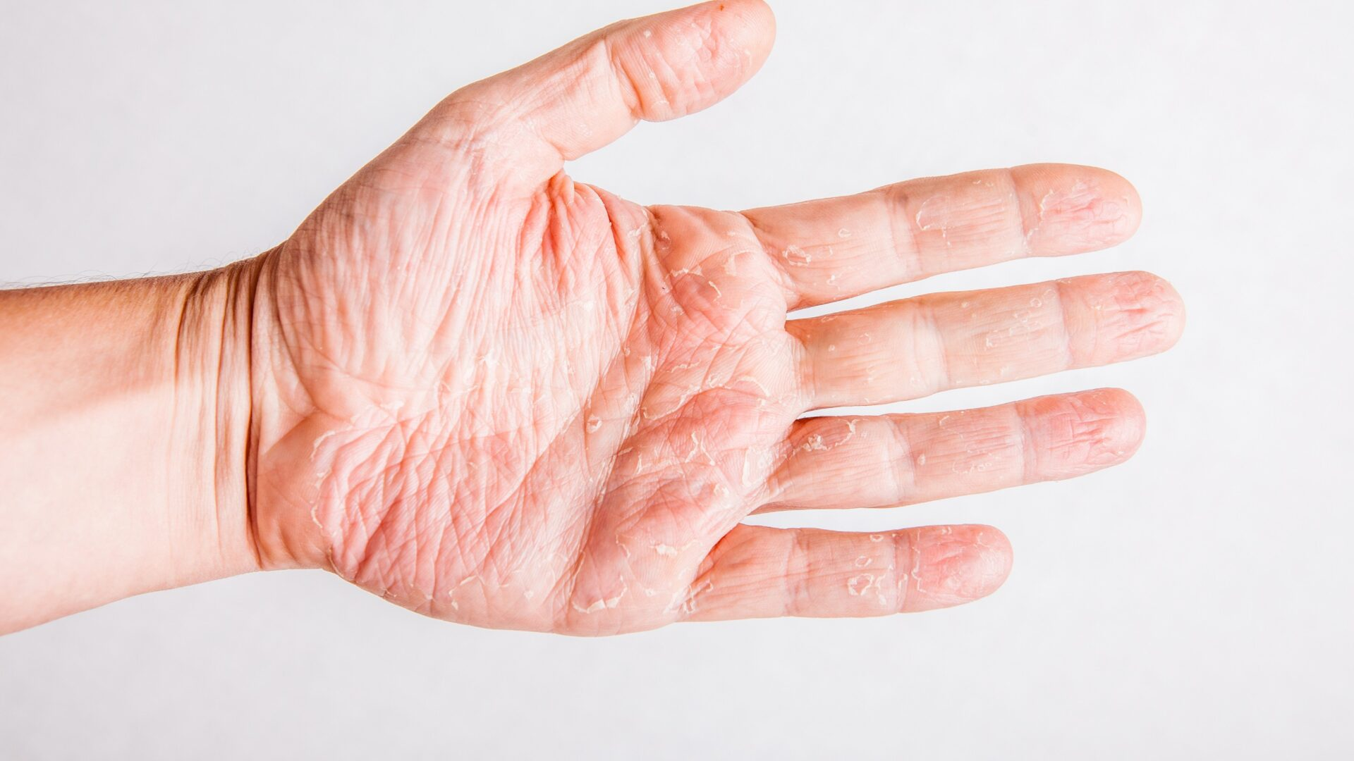 objawy suchej skóry