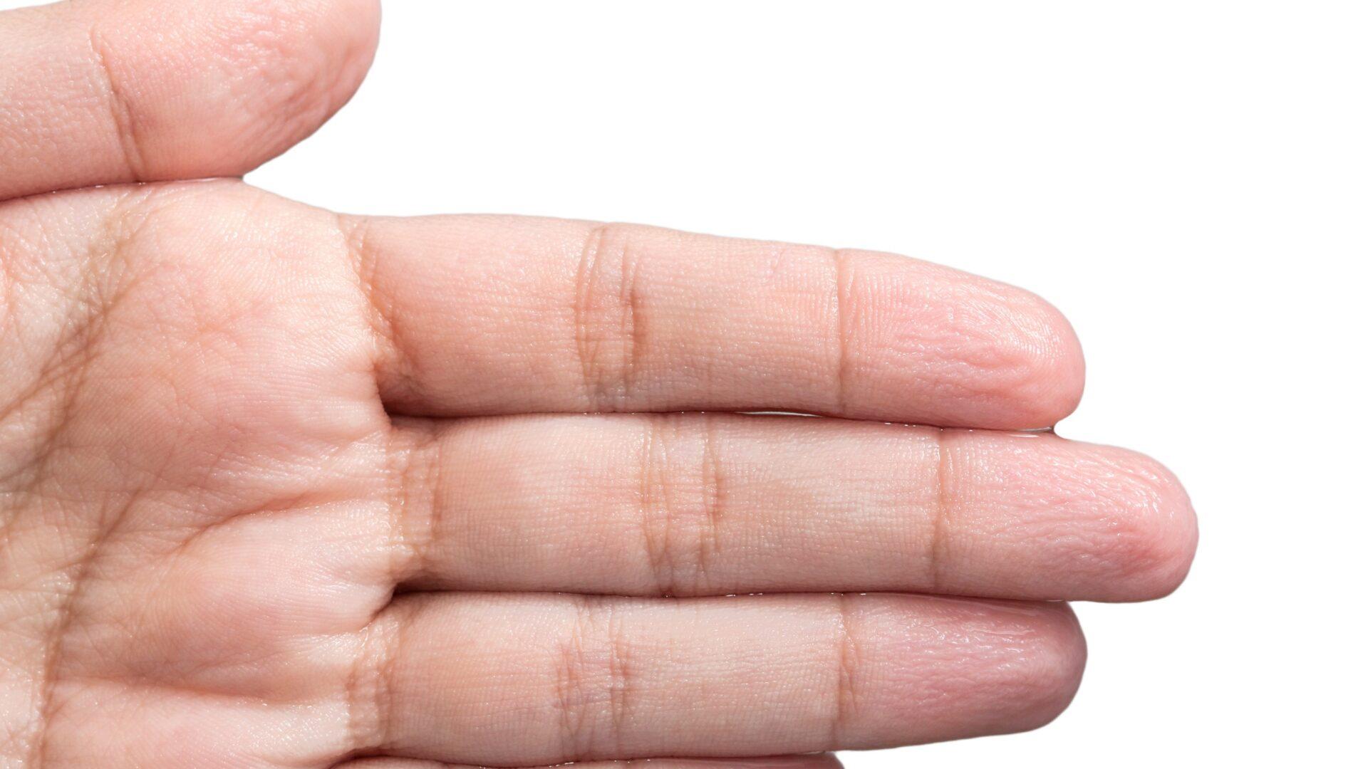 przyczyny suchej skóry