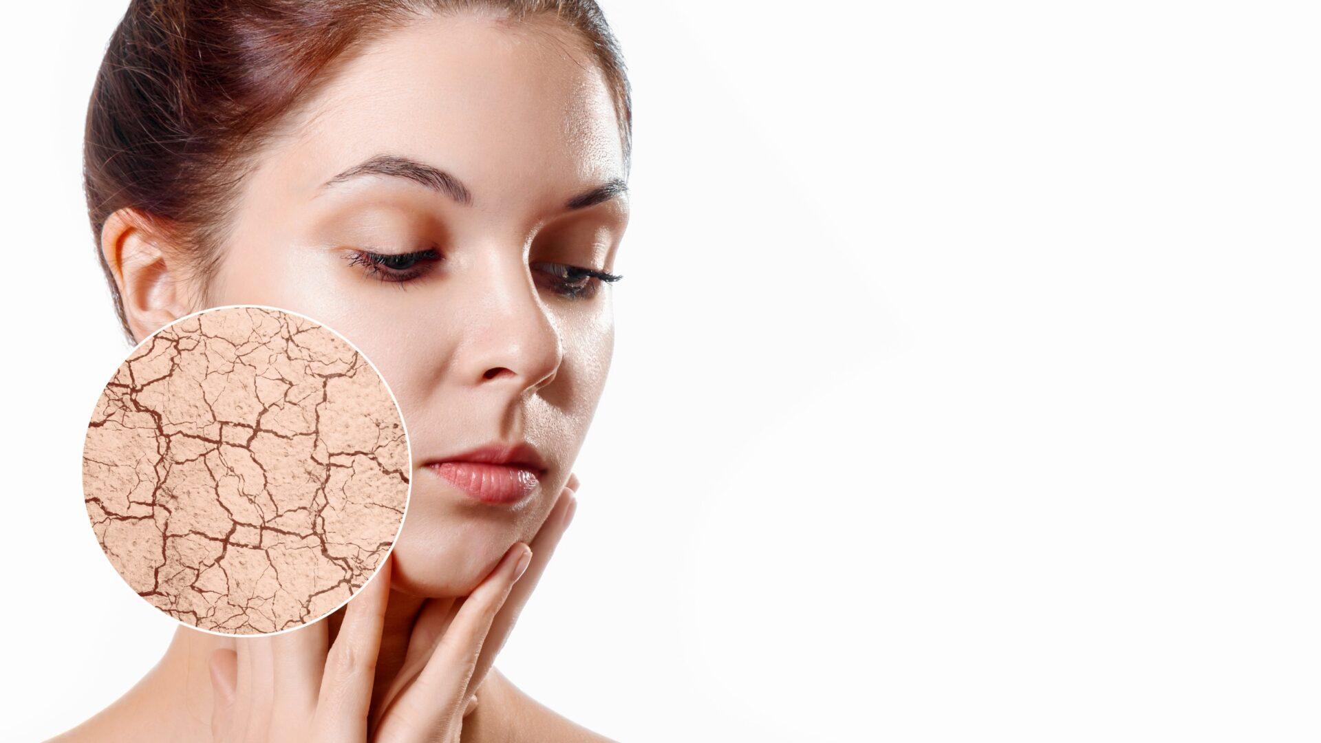 sucha skóra twarzy warszawa