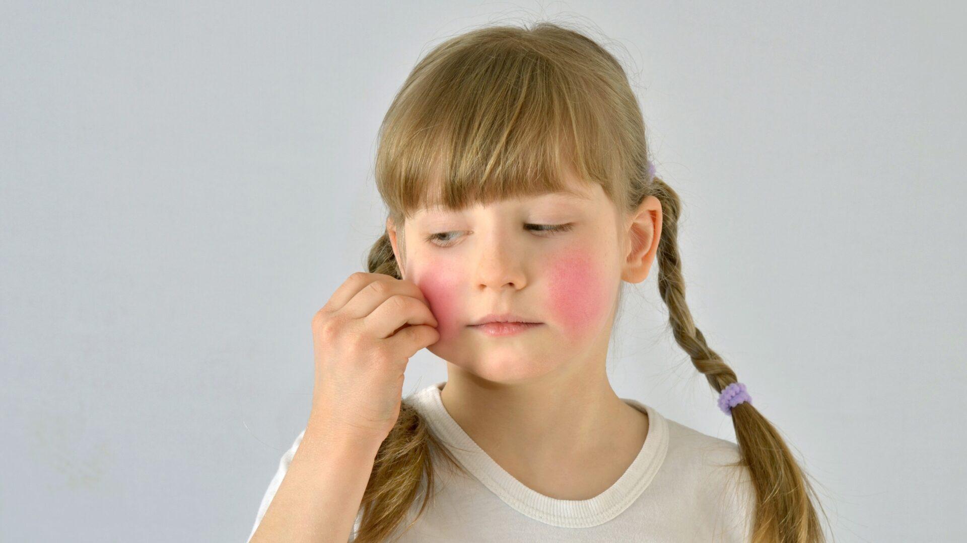 sucha skóra u dziecka