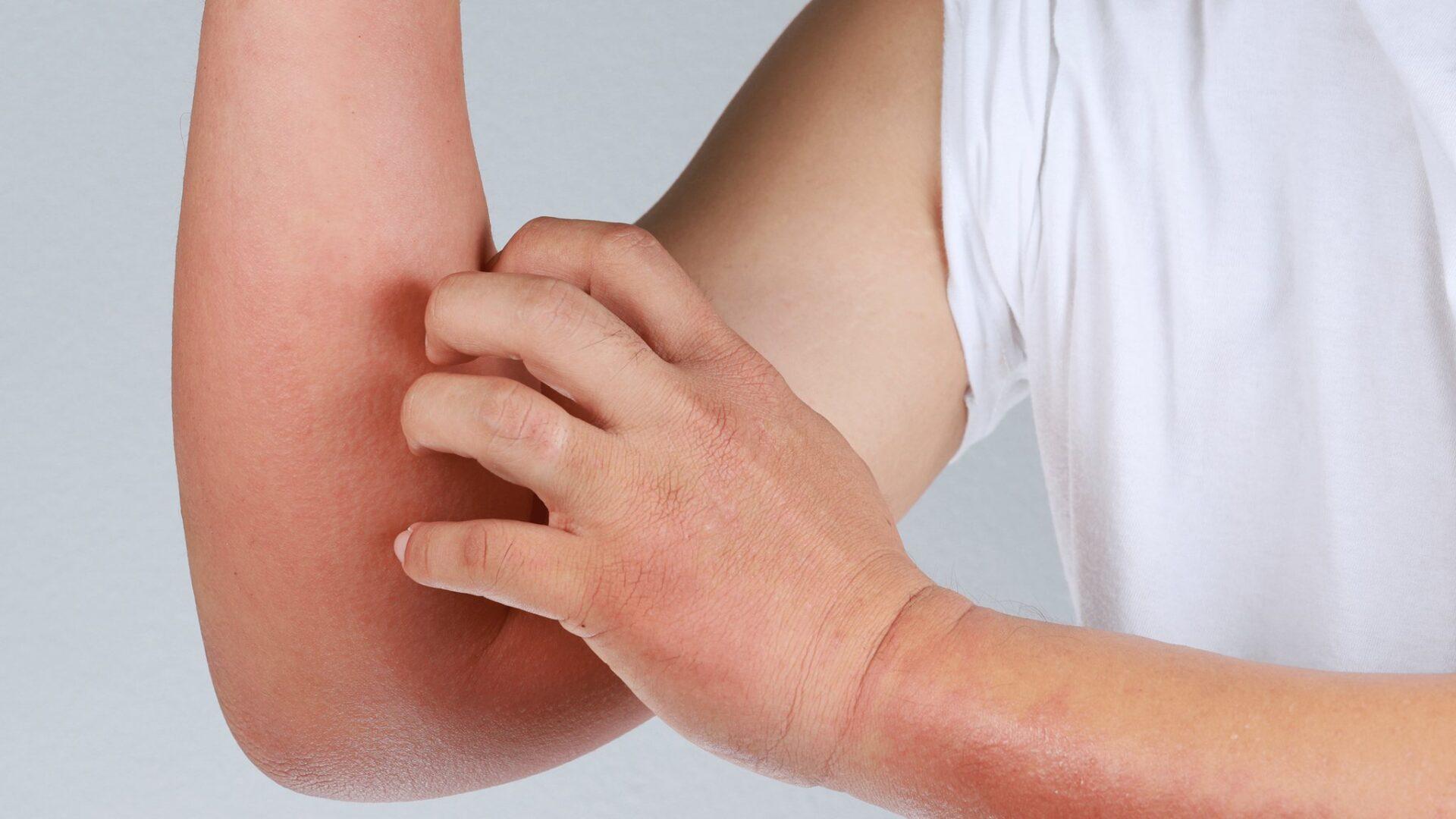 pielęgnacja przy atopowym zapaleniu skóry